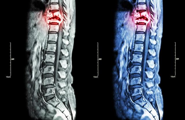 Spine metastasis ( cancer spread to thoracic spine )