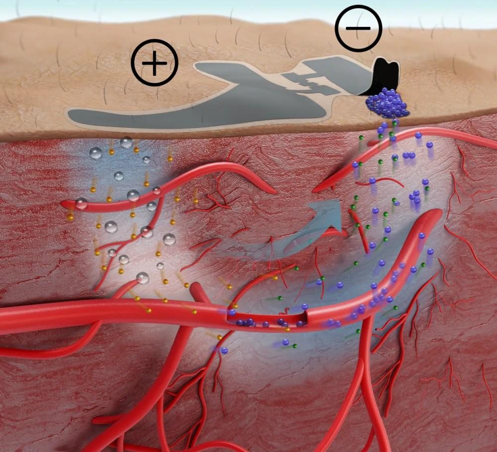 medium resolution of diagram of the biosensor atop cross section of epidermis