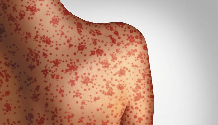 37% of Measles Cases Analyzed In The US In 2015 Were Caused By The MMR Vaccine