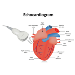 How Much Does an Echocardiogram Cost? (2019)