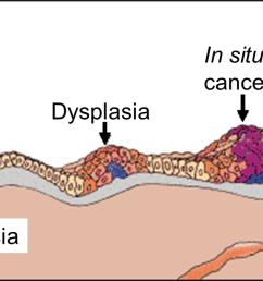 cancerevolution png [ 1465 x 619 Pixel ]