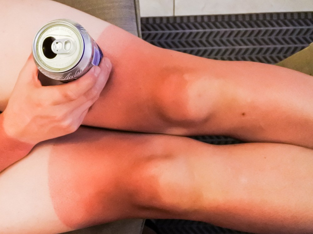 Sunburn and tan lines of a cyclist's legs