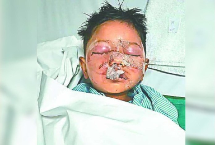 Four year old child found in nursery in injured condition at sahibabad