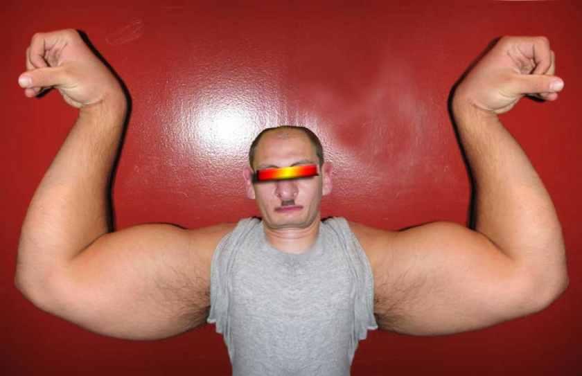 Hirn-Arm-Funktion, Krankheitsbild und Heilmethoden