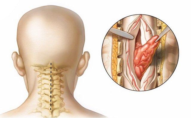 Как распознать рак позвоночника: симптомы и проявления, методы лечения и прогноз. Почему развивается опухоль позвоночника и как с ней бороться Бывает ли доброкачественная опухоль в кости позвоночника