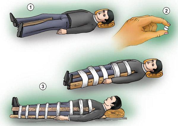 Симптомы перелома остистого отростка шейного позвонка и оказание первой помощи. Осложнения при переломах остистого отростка позвонков Перелом остистого отростка с2 позвоночника лечение