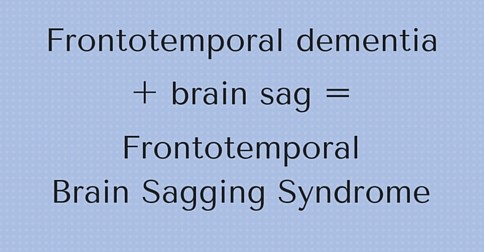 Frontotemoral dementia