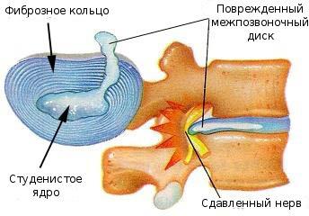 ألم الأضلاع و ألم ما تحت الأضلاع عيادة اطباء ايجناتييف