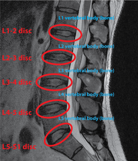 How To Understand Your Complex Spine MRI in 8 Easy Steps