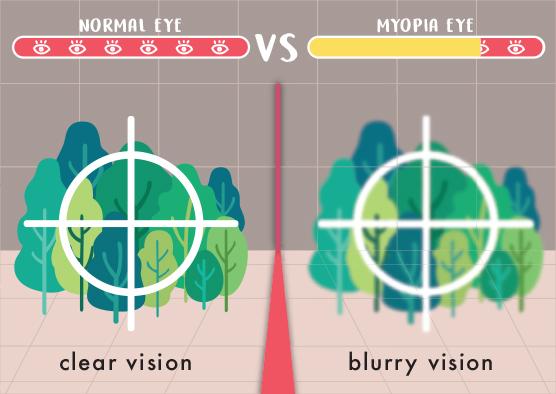 Myopia Theory