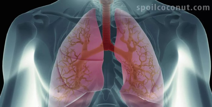7 Natural Foods Can Protect Your Lungs