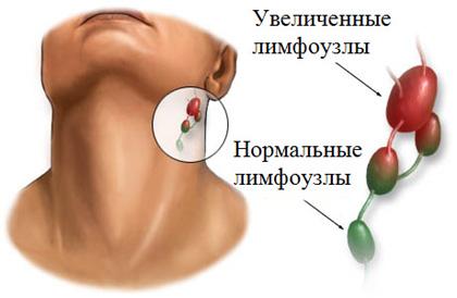 При воспалении лимфоузлов на шее можно ли мазать йодом