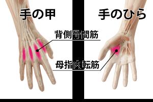指の腱鞘炎対策の筋膜リリース