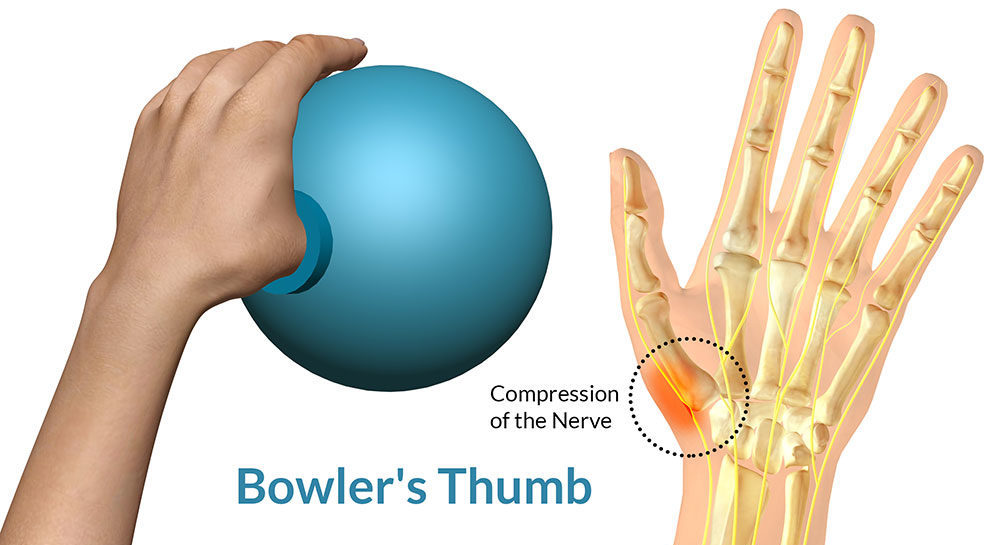 Bowling Injuries