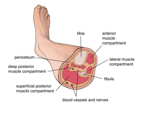 small resolution of figure 1 muscular compartments of the lower leg