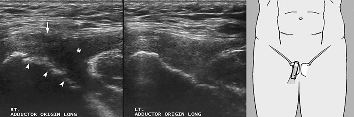 Pubic instability - Sports Medicine Imaging