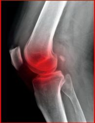 prevent knee injury2