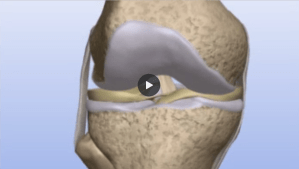 Understanding Allograft Cartilage Transplants