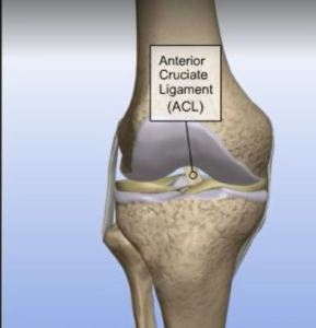 Understanding Torn ACL Allograft Procedure