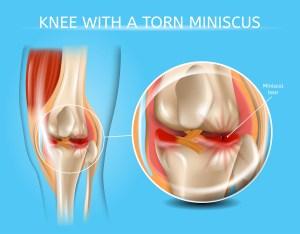 Understanding Torn Meniscus Repair