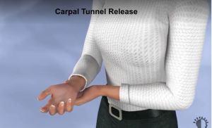 UNDERSTANDING CARPAL TUNNEL RELEASE PROCEDURE