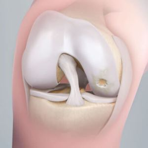 ARTICULAR CARTILAGE CAN BE DAMAGED IN A NUMBER OF WAYS