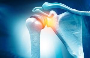Ep. 26: Treating Rotator Cuff Tears With Dr. Nik Verma