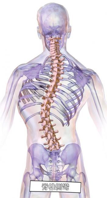 脊椎側彎可以健身嗎? | 運動星球 sportsplanetmag