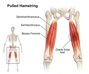 Anatomy of the Hamstrings