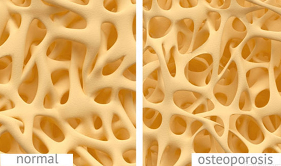 A way of diagnostics of osteoporosis and of determining of efficiency of preparations in treatment of this disease