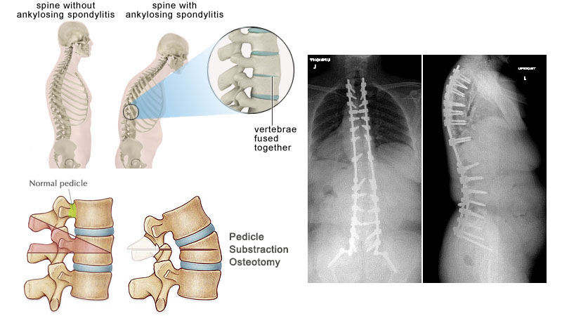 Hunched Back Correction in Ankylosing Spondylitis