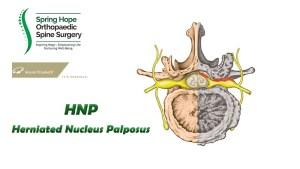 HNP (Herniated Nucleus Pulposus)