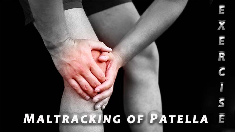 Exercises for Lateral Maltracking of the Patella