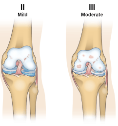 osteoarthritis progression diagram [ 1550 x 725 Pixel ]