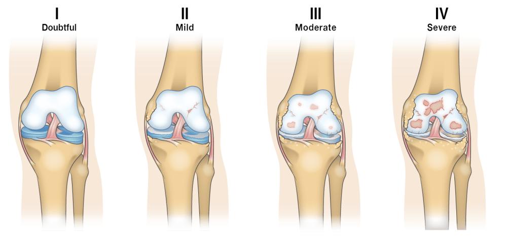 medium resolution of osteoarthritis progression diagram