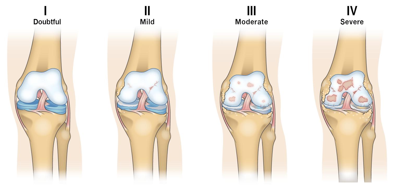 hight resolution of osteoarthritis progression diagram