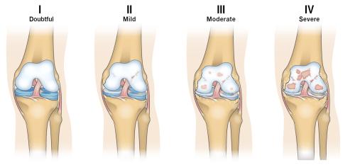 small resolution of osteoarthritis progression diagram