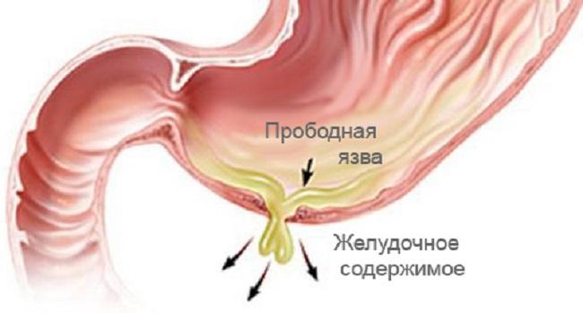 Objawy zapaleśni