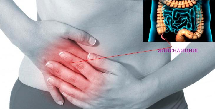 Recuperarea după o salpingo-ooforectomie bilaterală