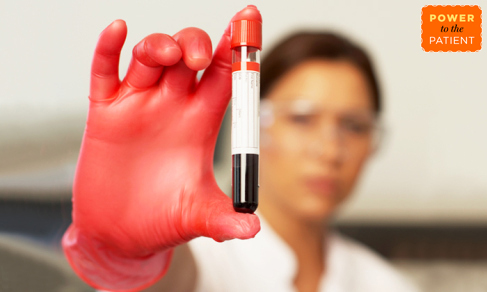 Things to consider before getting blood work.