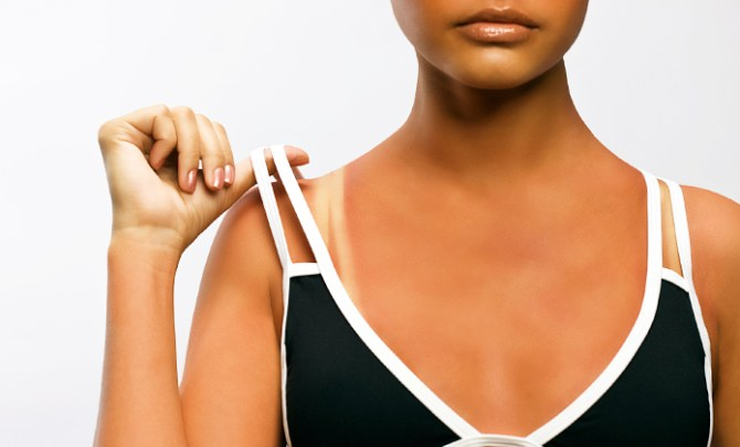 Ways to conceal a sunburn.