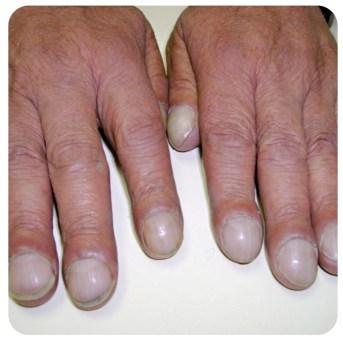 Why Do We Have Fingernails?