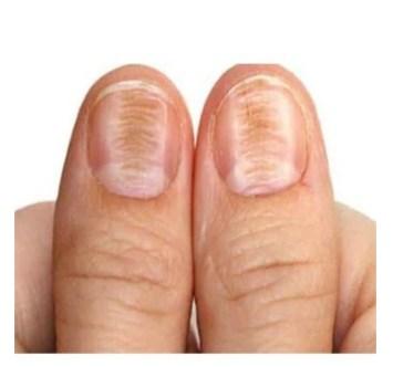 why do we have ridges on your fingernails