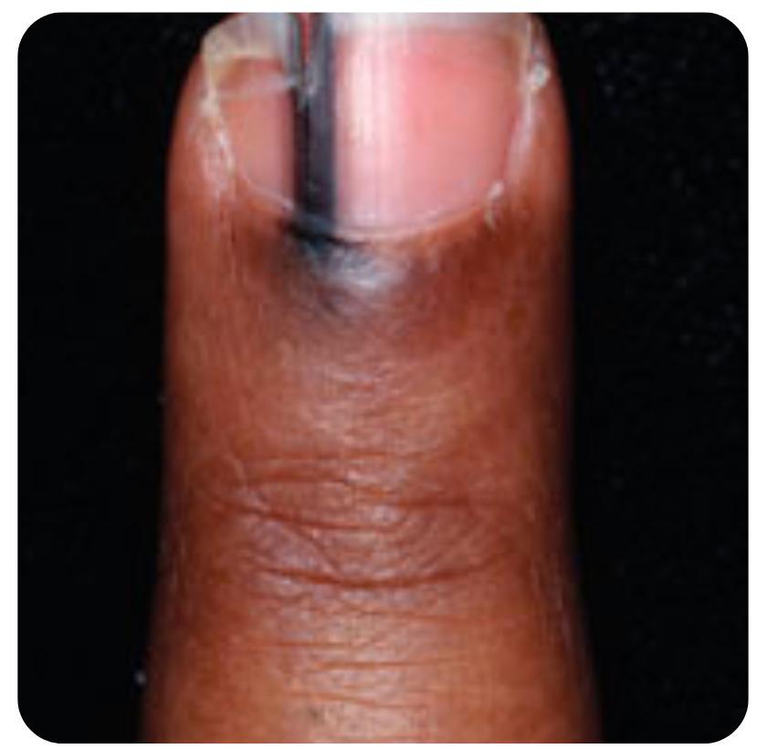 why do we still have fingernails