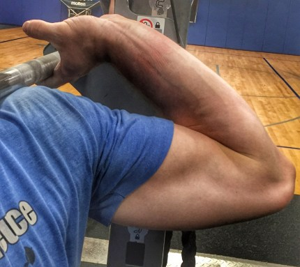 High Elbow Position