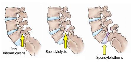 Spondylolysis .jpg