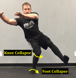 Knee Collapse