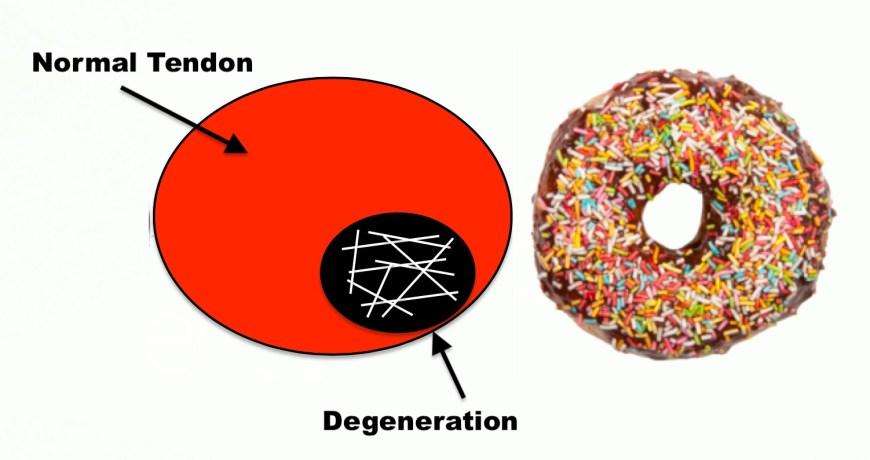 Degeneration.jpg