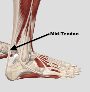 Insertional Vs Md Tendon.png
