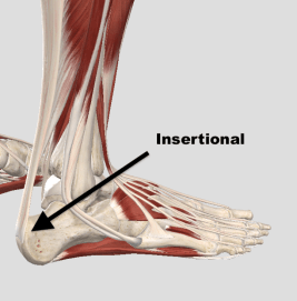 Insertional Vs Md Tendon